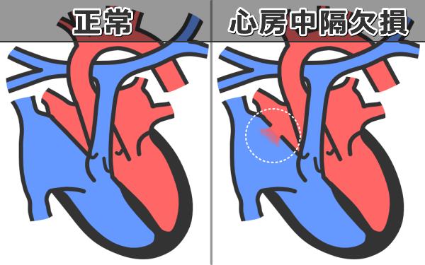 猫の心房中隔欠損症~症状・原因...
